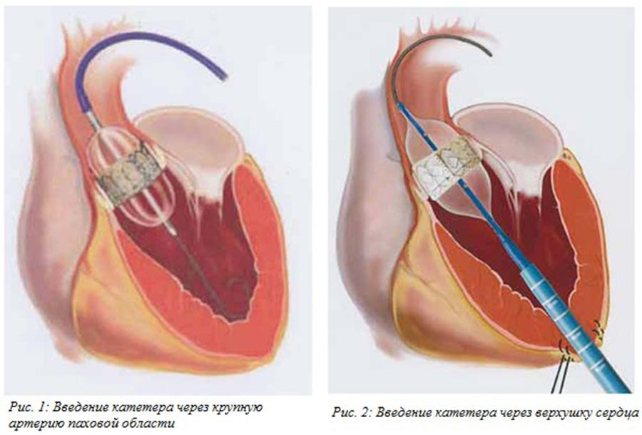 Эндопротезирование на аортальном клапане