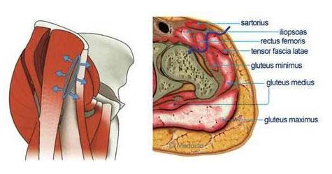 Хирургические доступы при эндопротезировании тазобедренного сустава