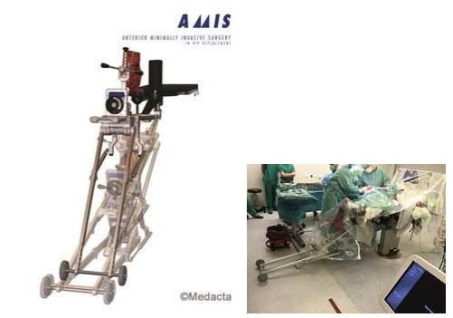 Операционный стол для эндопротезирования