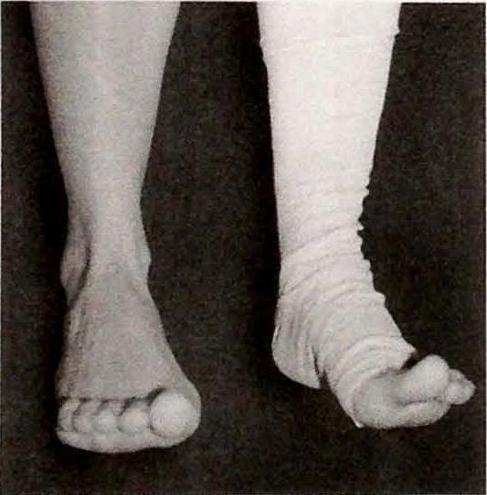Упражнения после эндопротезирования коленных суставов