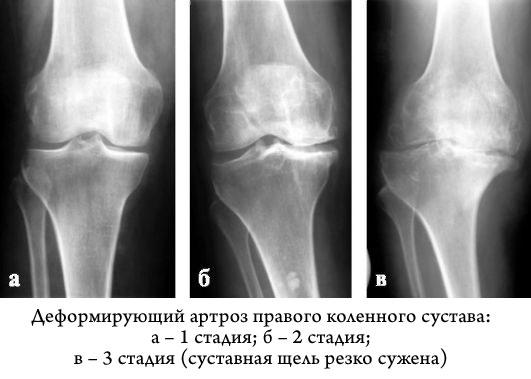 Суставная щель коленного сустава сужена к какому врачу обращаться если болят суставы