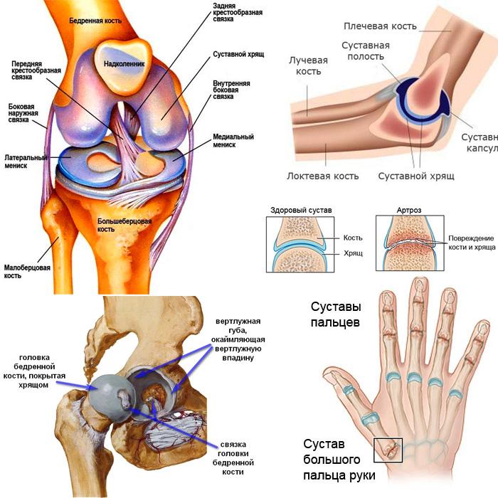 Артроз и остеопороз лечение